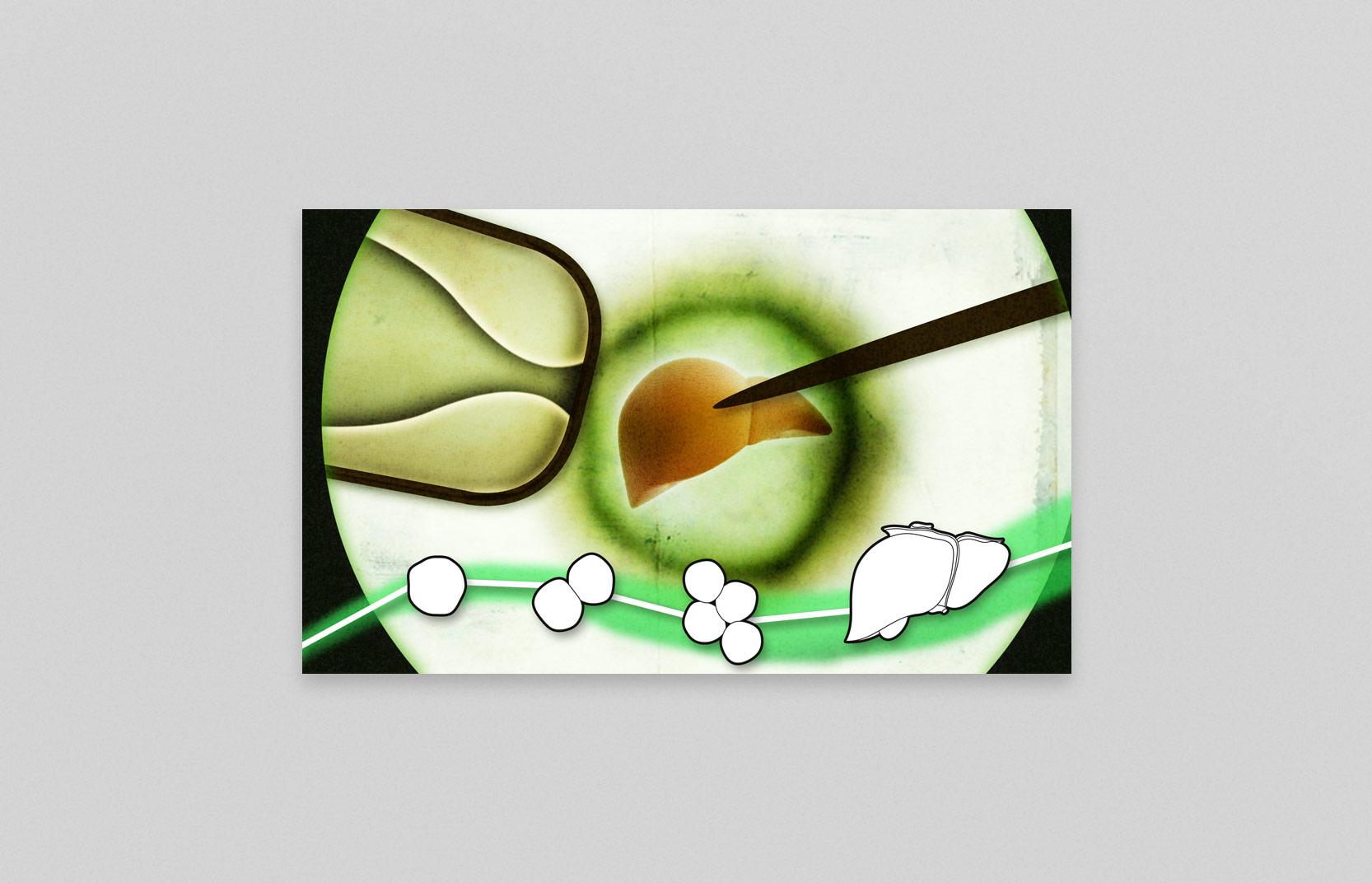 HD llustratie Nederlandse transplantatie stichting - Moederschip 2014